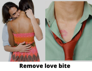 Remove love bite